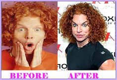 Carrot Top Plastic Surgery Before And After  #CarrotTopPlasticSurgery #CarrotTop #celebritiesplasticsurgery