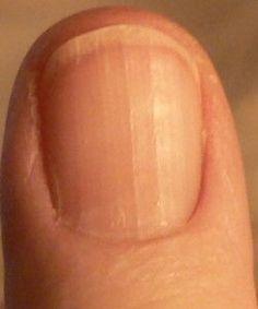 finger nails and diagnosis diagnosticar por las uñas