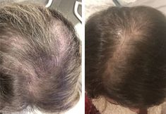 7 Proven Tips And Remedies To Regrow Your Hair Naturally And Fast