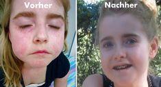 Als die 10-jährige Isabel zuerst Dr. Mark Hyman besuchte, hatte sie einen extremen Fall einer Autoimmunerkrankung, die als eine kombinierte Bindegewebserkrankung oder MCTD angesehen wurde. Ihre medizinische Diagnose bestand aus rheumatoider Arthritis und systemischem Lupus erythematodes. Ihr Zustand trat bei mehreren unfähigen negativen Auswirkungen auf, und ihre Krankheit wurde als unheilbar angesehen. Isabels Krankheit hat