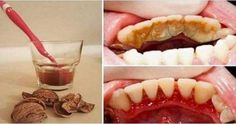 Dental plaque, tartar and bleeding gums are part of the .- Tandplak, tandsteen en bloedend tandvlees behoren tot het verleden dankzij walno… Dental plaque, tartar and bleeding gums are a thing of the past thanks to walnuts, GREAT! Gum Health, Oral Health, Best Teeth Whitening, Bad Breath, Health Advice, Health Remedies, Healthy Tips, Healthy Food, Raw Food