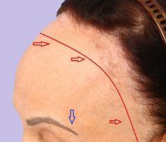 Alopécia Fibrosante Frontal é uma doença relativamente nova, considerada uma variante do Liquen Plano Pilar. Foi descrita pela primeira vez em 1994, ou seja, há pouco mais de 20 anos e é caracterizada pela perda progressiva dos pelos da linha anterior dos cabelos e das sobrancelhas #dermatologiaesaude #dermatologia #alopecia #quedadecabelos #alopeciacicatricial #alopeciafrontalfibrosante