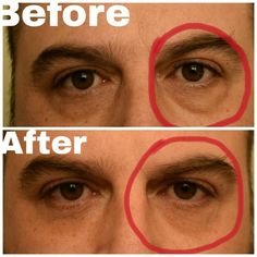 So exciting to see Instantly Ageless working like MAGIC. Just got this picture from my beautiful friend Natalie who is a professional makeup artist in Los Angeles. She tried it on her husband and look at the results, NO MORE BAGS in less than 2 minutes!!!! WOOHOO!!! Laugh Lines, My Beautiful Friend, Professional Makeup Artist, Wrinkle Remover, Look Younger, Forever Young, Dark Circles, How To Remove, Husband