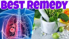 Cure LUNG CANCER with This HERB! The Best Herbal Remedy for Killing Lung Cancer Cells!
