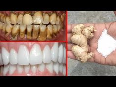 In just Two Minutes, White Teeth Whiten And Shiny Like Pearls, This Recipe! Paper crafts In just Two Teeth Health, Healthy Teeth, Dental Health, Healthy Tips, Teeth Whitening Remedies, Natural Teeth Whitening, Phenix Tattoo, Baking Soda Teeth, Get Whiter Teeth