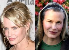Celebrity Daryl Hannah Botox Plastic Surgery Before And After – www.celeb-surgery… Celebrity Daryl Hannah Botox Plastic Surgery Before And After – www. Extreme Plastic Surgery, Bad Plastic Surgeries, Plastic Surgery Gone Wrong, Celebrity Plastic Surgery, Celebrities Before And After, Celebrities Then And Now, Forehead Lift, Daryl Hannah, Pretty Hurts