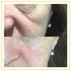 Under eye bags softened using dermal fillers under the eyes. Performed by Dr. Rahma Targett at Advanced Cosmetic Medicine.