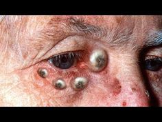 60 Best Omg Images Pimples Pimple Popping Epidermoid Cyst