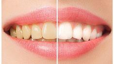 İnci gibi beyaz dişlere sahip olmak ve gönül rahatlığıyla gülümsemek, güzel görünmek isteyen herkesin hayalidir.