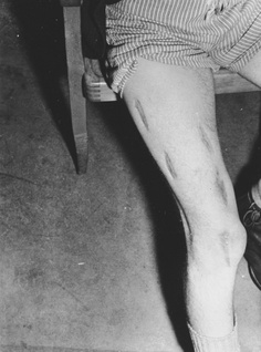 Close-up view of the badly scarred leg of a survivor who was probably the victim of medical experimentation in the Dachau concentration camp