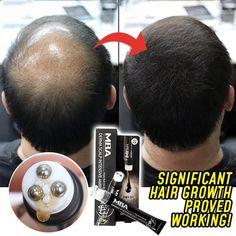 Scalp Intense Roll-on Hair Growth Serum Triple Roll Massager Fast Regrow Hair Line Anti Hair Loss Essence
