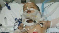 'Miracle' US baby survives 11-storey fall