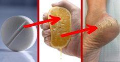 Elimina las durezas de los pies de forma eficaz con tan solo estos dos ingredientes. No te lo puedes perder!!