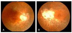 Right (A) and left (B) fundus photopraphs showing bilateral symmetrical annular bands of depigmentation beginning at the lower part of the optic disc that pass along the course of the lower temporal vessels.