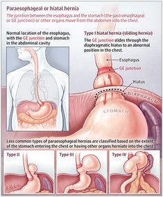 This JAMA Patient Page describes paraesophageal hernia and its symptoms, diagnosis, and treatment. Nursing School Notes, Medical School, Nursing Tips, Funny Nursing, Hernia, Medical Anatomy, Human Anatomy And Physiology, Pediatric Nursing, Medical Science