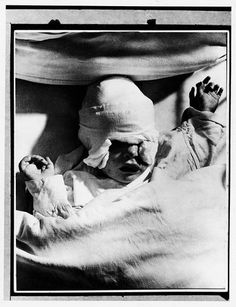 Heavily bandaged British infant, Margaret Curtis, injured during a German air raid on London.