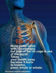 It's called Costochondritis-An inflammation of the cartilage that connects a rib to the breastbone. I've had a lot of rib pain. very very painful! Fibromyalgia Syndrome, Chronic Fatigue Syndrome Diet, Chronic Fatigue Symptoms, Fibromyalgia Pain, Chronic Illness, Chronic Pain, Fibromyalgia Treatment, Migraine, Rib Pain