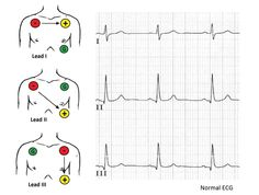 ecg_placement_all.jpg (1014×768)