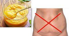 rimedio contro pelle flaccida