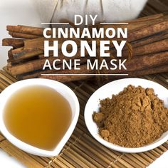 We get acne at all ages! Try this DIY Cinnamon Honey Acne Mask - it works wonders! #acnemask #DIY #beauty