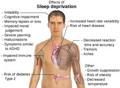 Sleep Deprivation Hinders Thinking During Crisis - http://gazettereview.com/2015/05/sleep-deprivation-hinders-thinking-during-crisis/