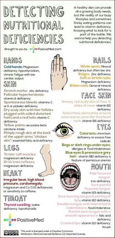 Detecting Nutritional Deficiencies, good to know! Looks like I'm low in magnesium and zinc. Health And Nutrition, Health And Wellness, Health Tips, Health Fitness, Health Care, Fitness Facts, Nutrition Chart, Health Exercise, Holistic Nutrition