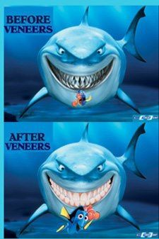 #GasperLazzara #Gasper #Lazzara #veneers #dental #dentist #orthodontics #orthodontist #finding #nemo #findingnemo #shark #dental #humor #funny #lol #dentalhumor #lazzarafamilyfoundation #charity #giving