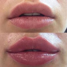 Facial Fillers, Botox Fillers, Dermal Fillers, Lip Fillers, Relleno Facial, Botox Lips, Facial Procedure, Perfect Nose, Hair Health And Beauty