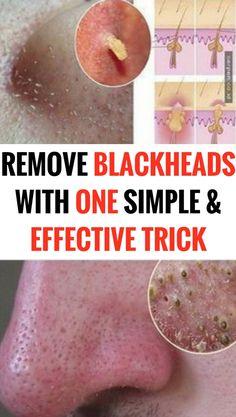 effective DIY pack to get rid of blackheads #homeremedies #diy #health