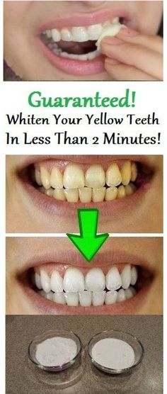How To Whiten Your Yellow Teeth In 2 Minutes Home Remedies