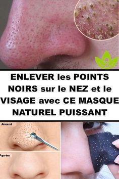 Comment ENLEVER les POINTS NOIRS sur le VISAGE avec CE MASQUE NATUREL Beauty Care, Diy Beauty, Beauty Skin, Beauty Hacks, Face Care, Skin Care, Body Hacks, Blackhead Remover, Skin Treatments