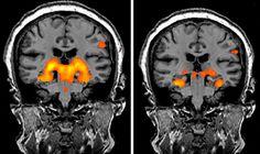 Training can improve memory in mild cognitive impairment