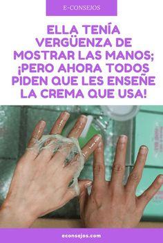 Manchas manos