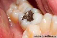 European Commission Report Recommends Phasing Out Dental Amalgam. (why is the U.S. so behind?)