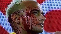El codazo que dejó 'K.O.' a Neymar