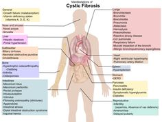 Understanding Cystic Fibrosis. May is Cystic Fibrosis Awareness Month.