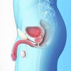 Bricolaje drenaje de próstata