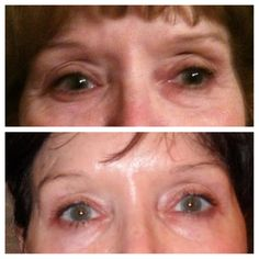 More Real Results with NeriumAD!  www.missyvance.theneriumlook.com