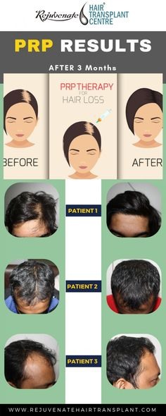 PRP therapy is the most suitable and effective treatment for hair loss treatment. By taking some month of PRP session you get recover your damaged hairs. Prp For Hair Loss, Why Hair Loss, Biotin For Hair Loss, Hair Loss Women, Prevent Hair Loss, Biotin Hair, Excessive Hair Fall, Platelet Rich Plasma Therapy, Causes Of Hair Fall