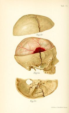 Illustration of epidural hematoma in Medical Illustration Atlas and Epitome of Traumatic Fractures and Dislocations, Heinrich Helferich, Joseph Colt Bloodgood (1902), p. 97  #anatomy #skull #medicaldiagram
