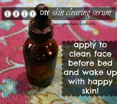 DIY Skin Clearing Serum ~ 3 1/2-4 TBL Aloe Vera Gel, 15 drops Melaleuca, 10 drops Ylang Ylang, 7 drops Lemongrass, 5 Lavender. Use after cleaning & removing make up.