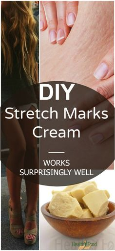 Here is a a potent recipe for a DIY stretch mark cream that successfully fights the stretch marks as well as cellulite. Easy to be prepared, completely natural and toxin-free. Beauty Care, Diy Beauty, Beauty Skin, Beauty Hacks, Beauty Makeup, Stretch Marks, Cocoa Butter, Shea Butter, Hair And Beauty