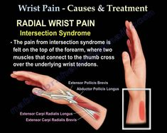 Educational video describing conditions of the wrist which may cause pain. These include De Quervain syndrome ganglion cysts tenosynovitis etc Wrist Pain, Hand Wrist, Ganglion Cyst Wrist, Carpal Tunnel Syndrome, Evaluation, Psoas Muscle, Nursing Notes, Physical Therapy, Health