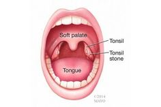 What Do Tonsil Stones Look Like When They Come Out