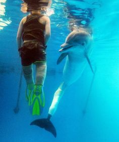 Boy with prosthetic legs swims with dolphin with artificial flipper