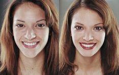 Face Beauty tips with feet,nails,wrinkle,dandruff free beauty tips Daily Beauty Tips, Beauty Tips In Hindi, Beauty Tips For Face, Beauty Secrets, Face Beauty, How To Remove Dandruff, Beauty Hacks Eyelashes, Beauty Nails, Beauty Makeup
