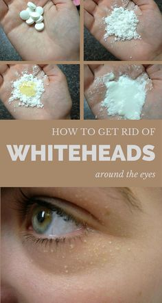 How to get rid of whiteheads around the eyes. Organic Beauty, Organic Skin Care, Natural Skin Care, Organic Makeup, Pure Beauty, Natural Beauty, Whiteheads Under Eyes, How To Remove Whiteheads, Beauty Care