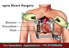 https://indiacardiacsurgery.wordpress.com/2017/09/15/saudi-arabia-patients-get-special-offer-for-open-heart-surgery-in-india/