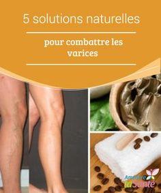 5 solutions #naturelles pour combattre les varices Les #varices constituent un #problème #circulatoire #inesthétique et dangereux pour la santé. Découvrez comment vous en débarrasser naturellement !