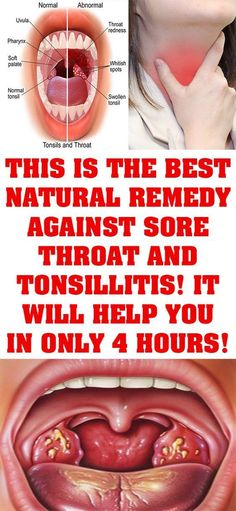Natural Remedies For Sinusitis This Is The Best Natural Remedy Against Sore Throat And Tonsillitis! It Will Help You In Only 4 Hours! Foods For Sore Throat, Help Sore Throat, Chronic Sore Throat, Sore Throat And Cough, Throat Pain, Best For Sore Throat, Natural Remedies, Home Remedies, Insomnia